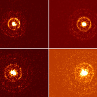 X-ray Outburst of Soft Gamma-ray Repeater 1E 1547.0-5408